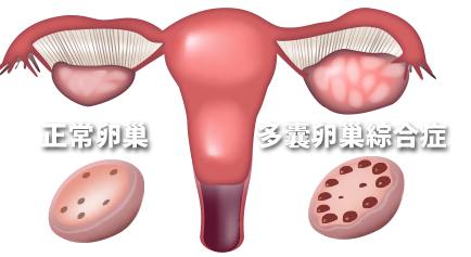 四惠中医医院 多囊卵巢综合征